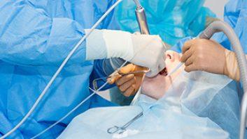 Préparation de la chirurgie