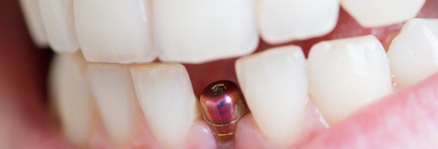 À quoi sert un implant dentaire ?