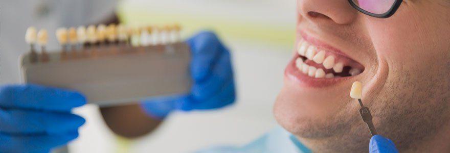 Couronnes dentaires : opter pour la couronne en céramique