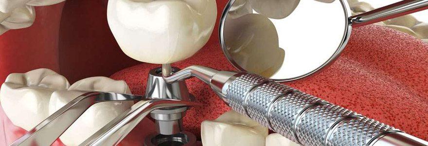 Quels sont les avantages de la pose d'implant dentaire ?
