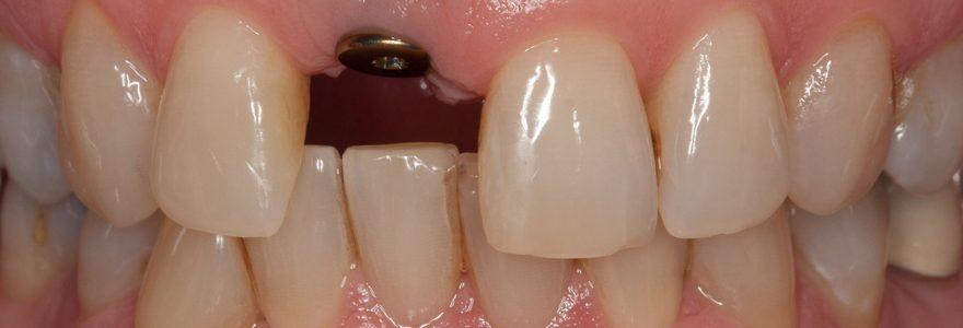 L'implant dentaire, un réel investissement