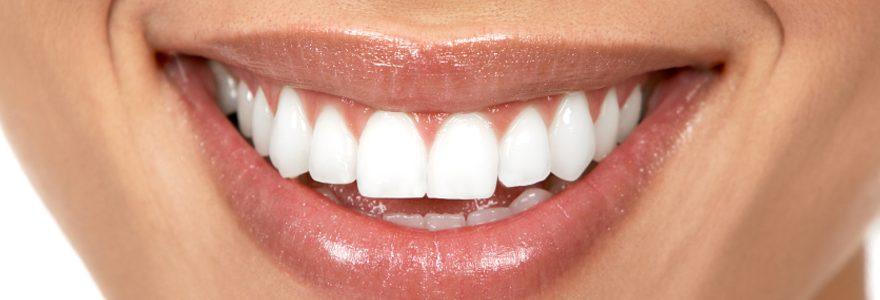 L'implant dentaire, qu'est-ce que c'est ?