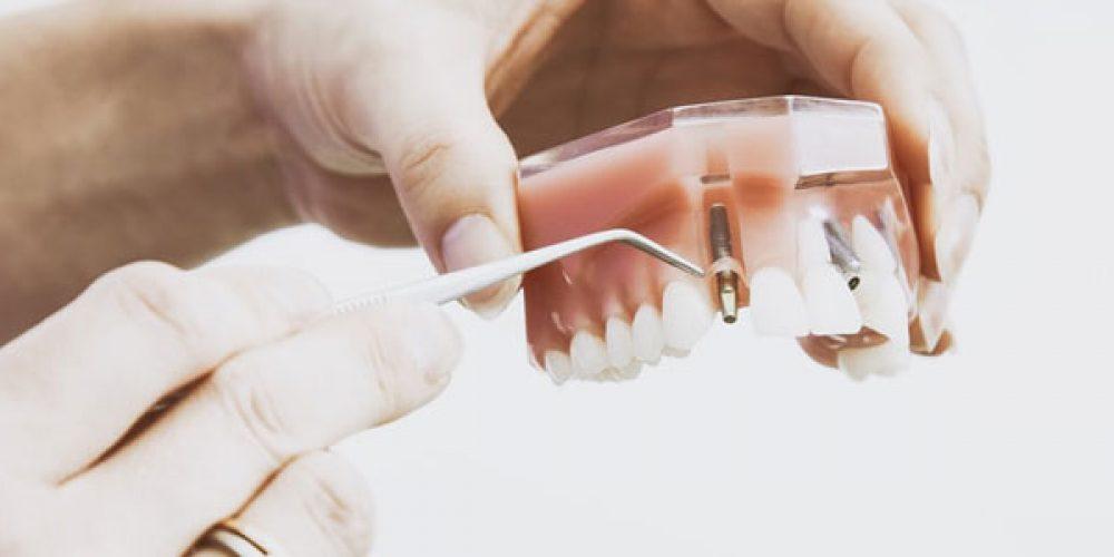 Pourquoi se faire poser un implant dentaire en Turquie ?