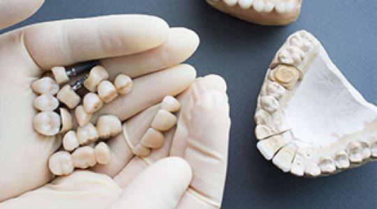 Rôle de la couronne dentaire
