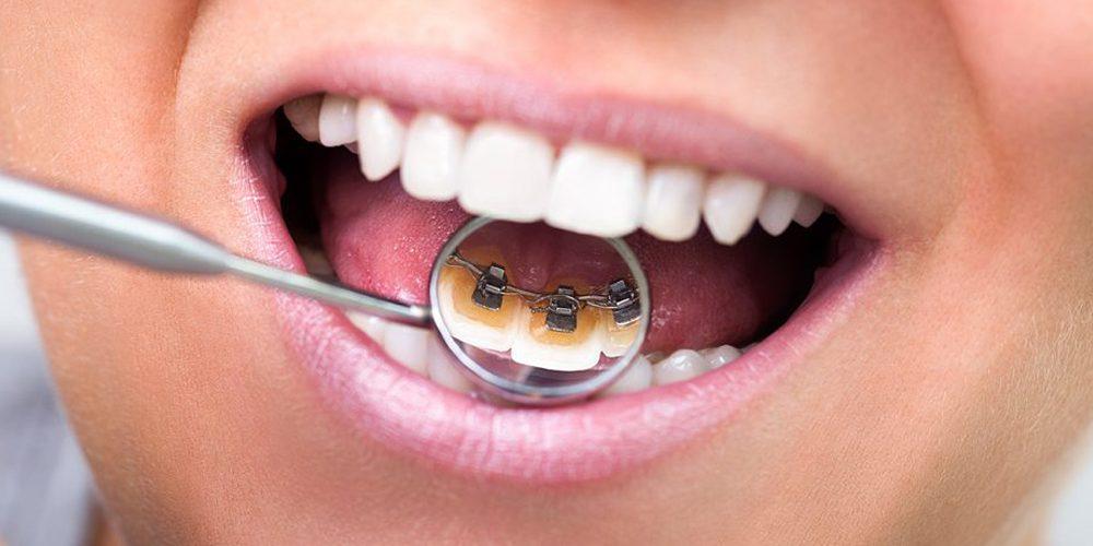 Orthodontie linguale : avantages et inconvénients