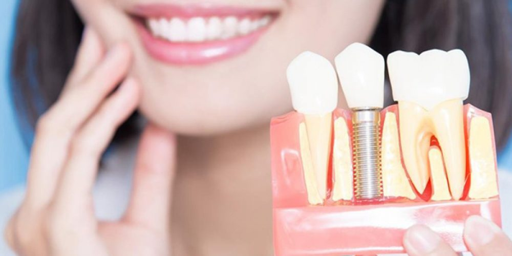 Les avantages de procéder à un implant dentaire