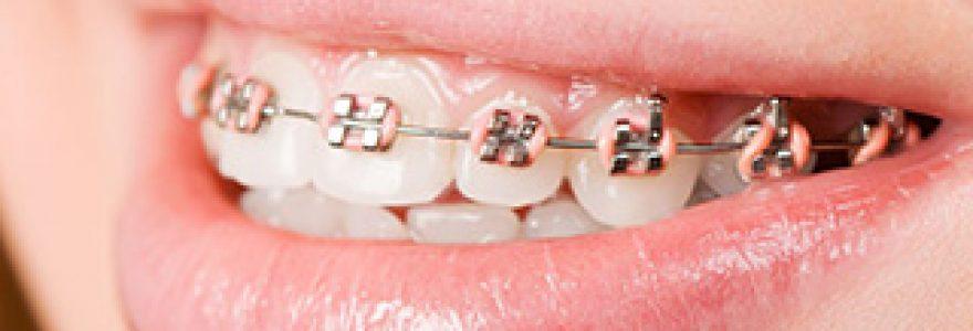 Appareils orthodontiques
