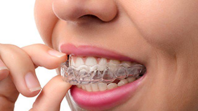 L'orthodontie