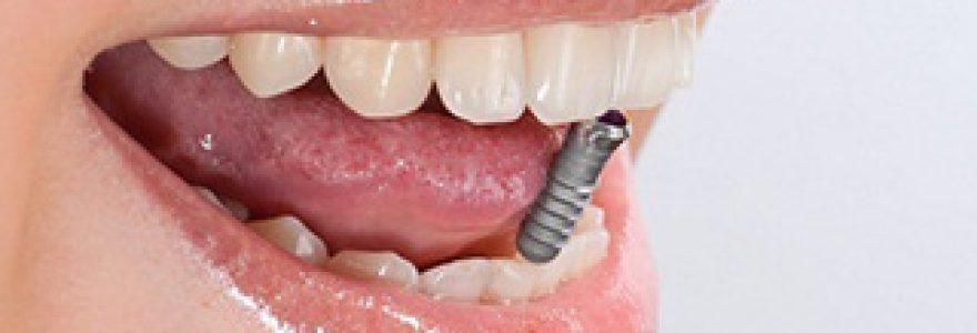 L'implantologie dentaire