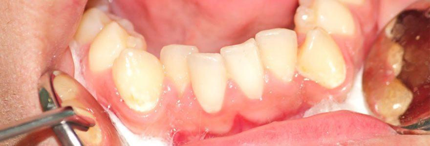 Problèmes de dents : trouver un service d'urgence dentaire dans le 92
