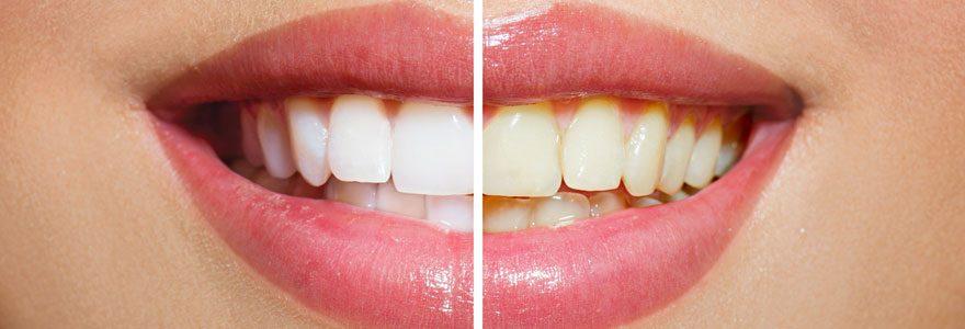 Le blanchiment des dents pour retrouver un beau sourire