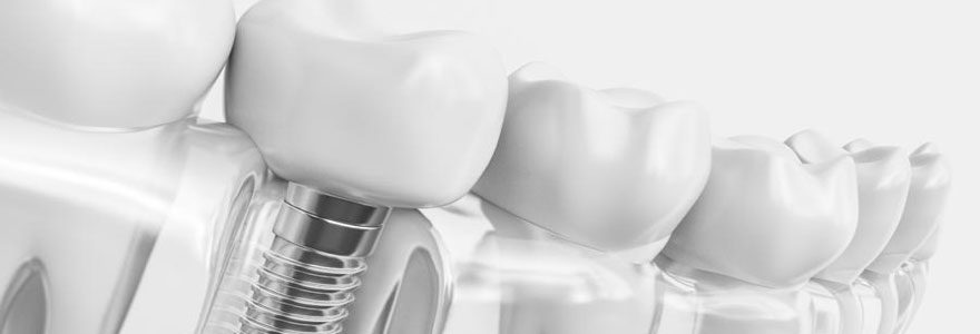 Quel type de couronne dentaire choisir ?