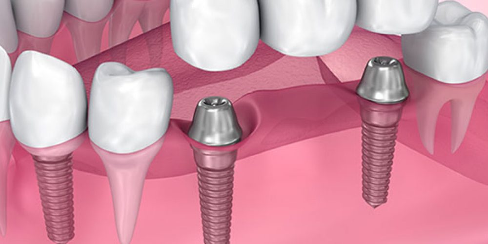 Prendre rendez-vous dans un centre dentaire à la défense pour la pose d'implants